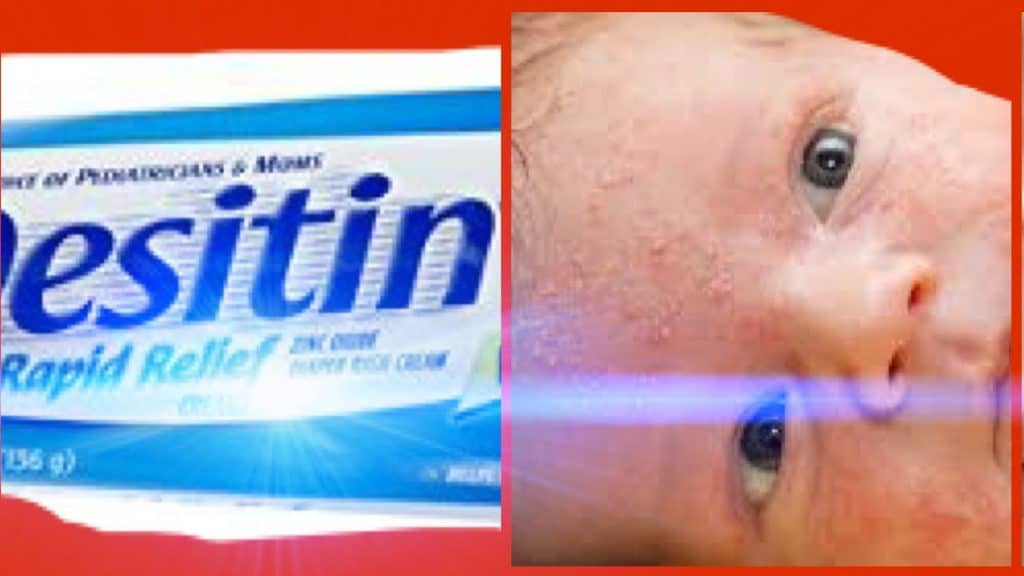 crema acne bebe