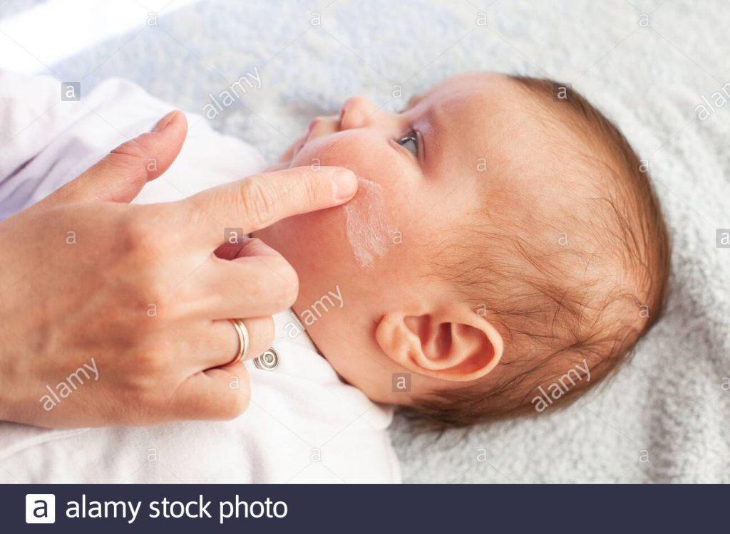 crema dermatitis bebe cara