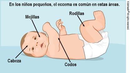 Crema Para Mejillas Rojas Bebé